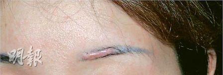 有女士紋眉後再接受激光洗眉,因激光使用不當,導致嚴重肉芽增生。該女士需再打針,方能令肉芽部分回復平坦。(香港整容外科及醫學美容醫學會提供)