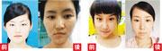 27歲的靳魏坤(左)和38歲的宓圓圓(右)赴韓國整容,誰料後患無窮,前者臉孔不對稱,後者則付出了身家及家庭。(網上圖片)