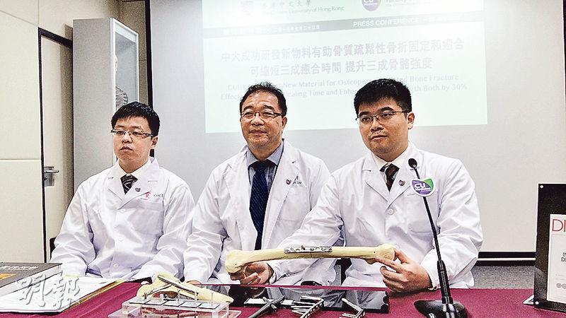 中文大學醫學院研發出新的鎂製骨釘,可縮短骨折癒合時間,也提高癒合骨骼的強度。(鄧力行攝)