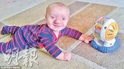 奧利罹患腦突出症,令腦部組織從顱骨孔洞透出生長,鼻子變得像高爾夫球般巨大。(網上圖片)