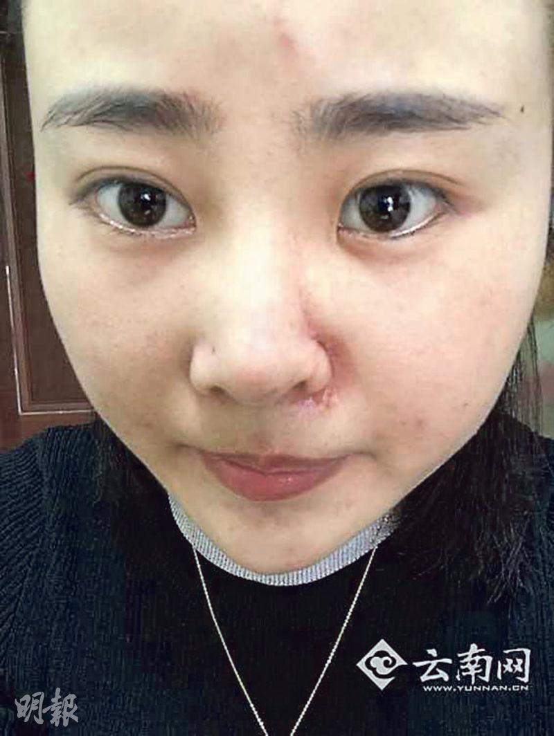 被毆的女事主臉部幾近毀容,左鼻翼附近仍見傷痕。(網上圖片)