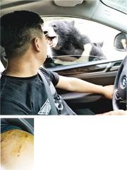 陳先生的友人拍下黑熊襲擊前的圖片,只見黑熊按着車窗,與陳相距甚近。被黑熊咬傷的左臂,仍留有很深的齒痕。(網上圖片)