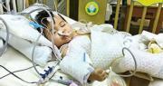 小予恩的父親指出,醫院未有按手術前的計劃,在女兒術後送往兒童深切治療部觀察,反而送往小兒外科病房;女兒病情及後急轉直下,疑未有得到適切治療,致心臟停頓約6分鐘,經搶救後已恢復心跳及呼吸,但仍未有意識,擔心情况持續恐成植物人。(小予恩父親提供)