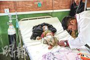 一名兩個月大的羅興亞難民患有急性腹瀉和嚴重急性營養不良,在無國界醫生住院部接受治理。(無國界醫生提供)