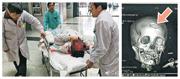 中醫科醫生黃×(左圖,躺下者)被錘砸傷頭部,X光片顯示顱骨凹陷(右圖箭嘴示)。(網上圖片)