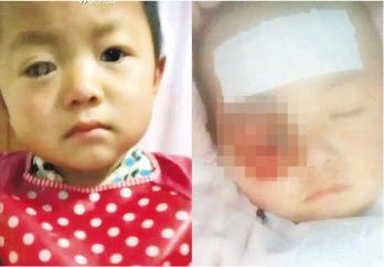 王鳳雅今年3月確診眼疾(左圖),病情急劇惡化(右圖),其母被質疑怠慢治療。(網上圖片)