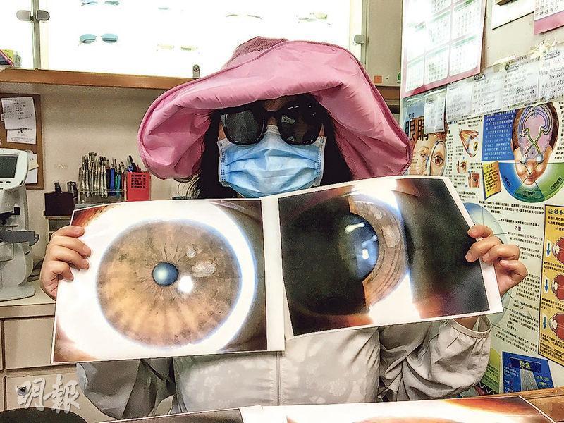 接受HIFU療程去魚尾紋而灼傷左眼的李太(圖),展示其受傷眼睛的照片。其左眼晶狀體出現兩條疤痕,整個晶狀體有九成位置變得渾濁,患上白內障,最終需更換人工晶體,才恢復視力。(許芳文攝)