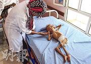 也門哈杰省北部一間醫院,護士在照顧嚴重營養不良的兒童。(法新社)