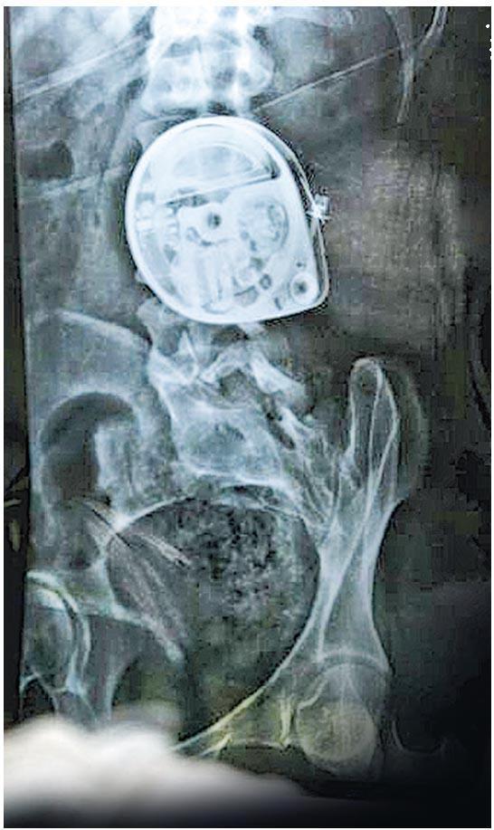 有患遺傳痙攣下半身麻痺患者,在背脊植入用來直接向脊椎注射藥物放鬆肌肉的輸液泵不能繫牢,卻難以修補,隨時有嚴重創傷或死亡危險。(網上圖片)