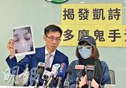凱詩美容前日被點名譴責營銷手法不良,顧客H小姐(右)稱凱詩的美容師聲稱她患濕疹,游說她參加療程,惟第二次療程後她出現皮膚敏感,眼睛更腫得睜不大。圖左為香港美容監察、民主黨消費者權益政策副發言人袁海文。(黃心悅攝)