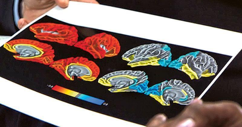 磁力共振影像的紅色部分,顯示每天長時間用智能裝置的兒童有大腦皮層過早變薄情况。(網上圖片)