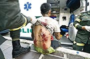 委內瑞拉邊境城鎮聖安東尼奧德爾塔奇拉周一再有衝突,其中一名示威者背上有傷,在西蒙玻利瓦國際大橋接受治療。(法新社)