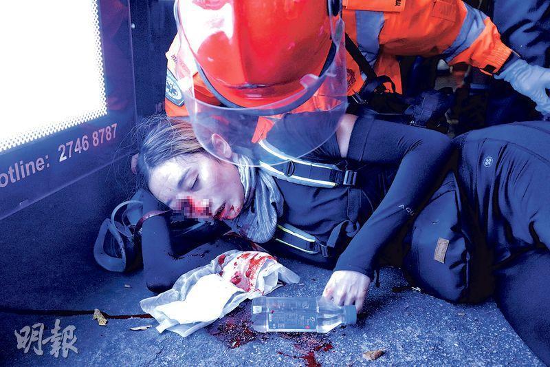 昨晚示威者與警方於尖沙嘴警署外激烈衝突,示威者向警署投擲磚頭及疑似汽油彈,警方發射催淚彈,其間有女示威者面部懷疑被布袋彈或橡膠子彈擊中,血流披面送院。醫院消息稱,該女子眼球被破壞,右邊內側眼角撕裂、鼻骨軟組織受傷。