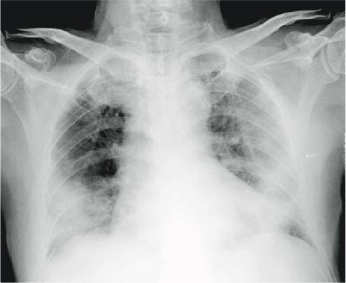 有患者雙肺在X光片下呈磨砂玻璃樣迹象(圖中肺中半透明部分),混濁、濕潤部分集中在肺部周邊,肺部中央炎症較少(肺中間黑色部分)。(醫管局提供)
