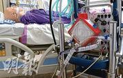 一名75歲女病人情况危殆,至昨日進一步轉差,需接駁「人工肺」(圖中為模擬情况)。她是本港首名需用「人工肺」的新冠病人。(資料圖片)