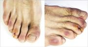 比利時和美國俄勒岡一個聯合研究小組發表「新冠腳趾」病例,指圖中23歲男子在發低燒和有乾咳數天,腳趾和足踝外側「急性」呈紫色而疼痛的斑,之後確診新型冠狀病毒。(網上圖片)