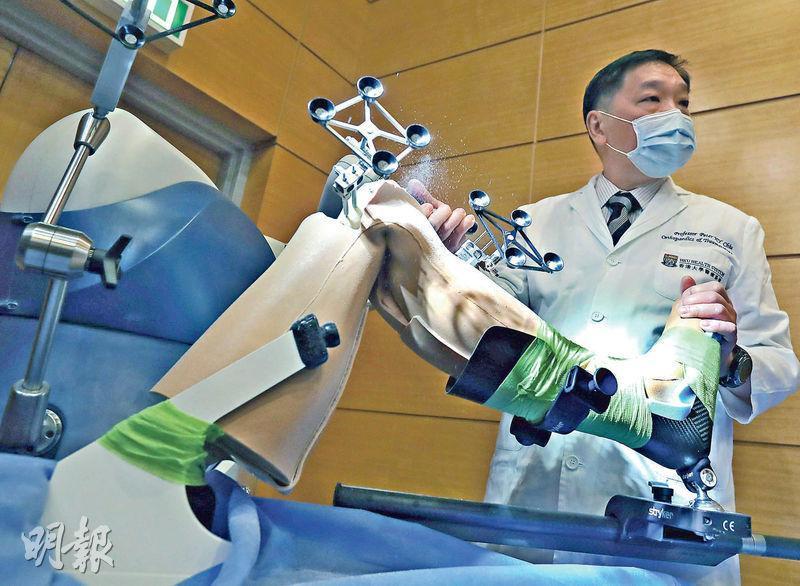 港大醫學院矯形及創傷外科學系臨牀教授曲廣運示範使用機械臂換關節,需於患者腿部安裝接收器(圖中有4個圓形組件的部分),以讓電腦接收患者關節掃描資料。(李紹昌攝)