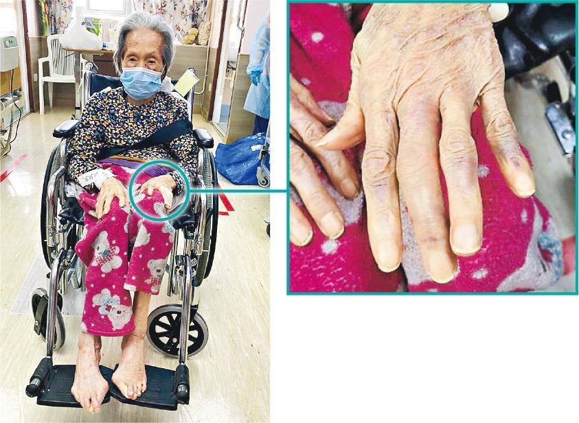 97歲婆婆去年12月21日早上受傷,院舍在24日才送院,經診治後發現左手中指骨折。家屬認為院舍至今仍未有合理解釋,稱已對院舍失去信心,現正辦理轉院手續,讓婆婆入住另一院舍安享晚年。(受訪者提供)