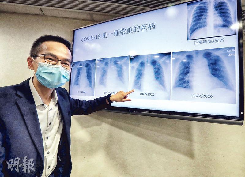 醫院管理局傳染病中心醫務總監曾德賢表示,新冠病毒可嚴重攻擊患者肺部。(李紹昌攝)