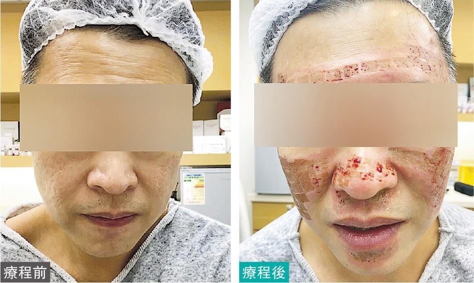 X先生接受CO2 laser療程前,面部只有一些暗瘡印(左),接受療程後,面部呈現一格格傷痕,且傷口滲血(右),負責療程的醫生曾家雄稱此為正常現象。(受訪者提供)
